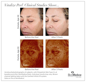 VitalizePeel_ClinicalStudies_1