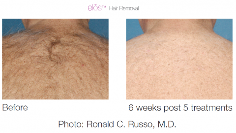 Laser Hair Removal In Macon Renaissance Plastic Surgery