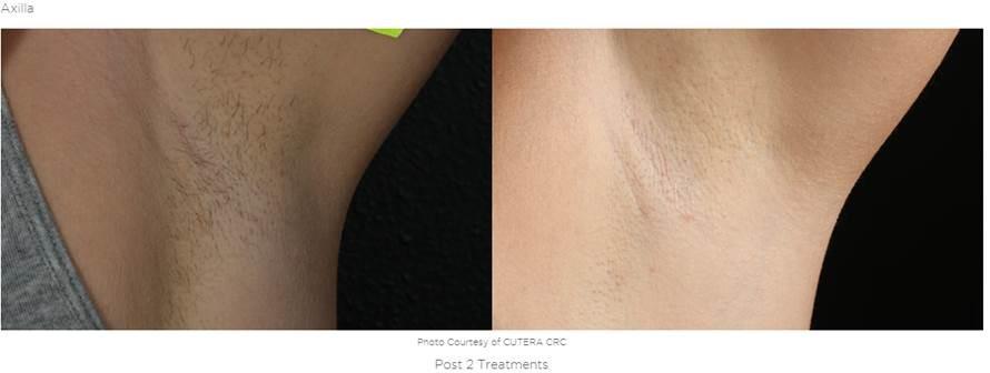 Laser Hair Removal Macon Ga Renaissance Plastic Surgery