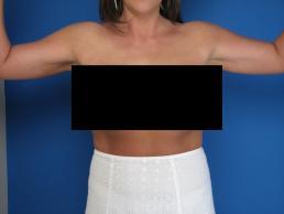 brachioplasty-macon