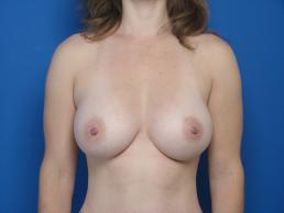breast-augmentation-macon