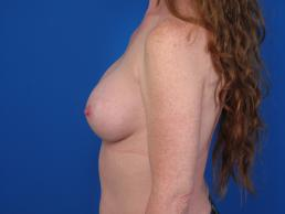 breast-augmentation-macon