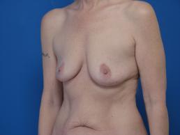 breast-reconstruction-free-tram-macon