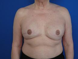 breast-reconstruction-tissue-expander-macon