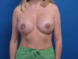 breast-reconstruction-tissue-expander-macon