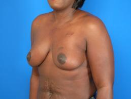 breast-reduction-macon
