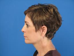 facelifts-macon