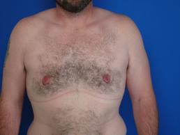 gynecomastia-macon