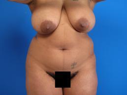 liposuction-macon