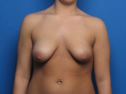 mastopexy-and-breast-augmentation-macon