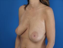 mastopexy-and-breast-augmentation-macon