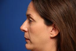 rhinoplasty-macon